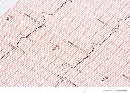 Health A Closeup Of A Chart Showing An Ekg Printout