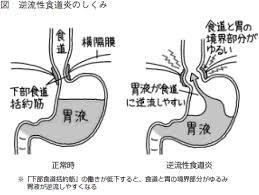 得けんこう教室逆流性食道炎生活習慣の改善をこころがけて 全日本