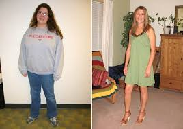 steffany sears 34 of gold bar wash lost nearly 70 pounds after receiving the lap band stomach shrinking device as part of a clinical trial in 2008