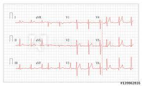 Heart Cardiogram Chart Vector Set Healthy Heart Rhythm