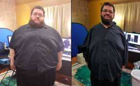 you star boogie2988 has lost more than 100 pounds since gastric byp surgery