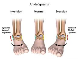 a sprained ankle