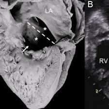 balanced form atrioventricular septal defect with a balanced form common valve a