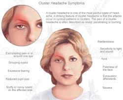 eye pain from a cer headache