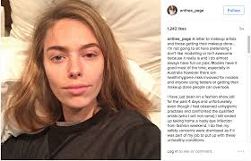 australian model anthea page gets eye infection requiring cation from a dirty makeup brush news