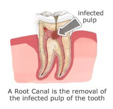 Image result for root canal