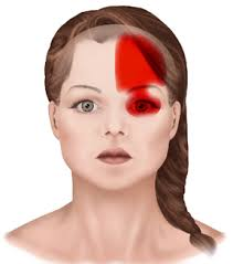 cluster headache location chart signs and symptoms of headaches general and cosmetic dentist