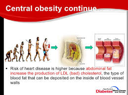 Image result for OBESITY AND heart ailments