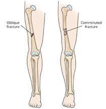 Femur Shaft Fractures (Broken Thighbone) - OrthoInfo - AAOS