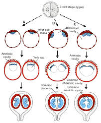 Types Of Twins Chart Twins Reproductive And Placental Research Unit