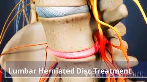 lumbar herniated disc treatment video