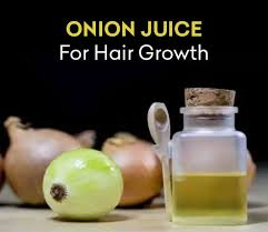 onion juice for hair growth benefits