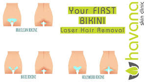 how to prepare for your first laser hair removal