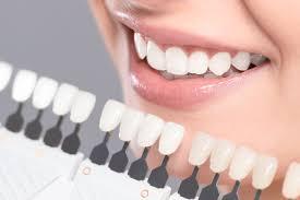 Teeth Whitening Whangarei Kowhai Dental