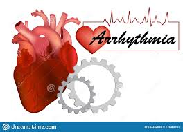 Types Of Arrhythmia Chart Heart Arrhythmia Or Irregular Heartbea Stock Vector