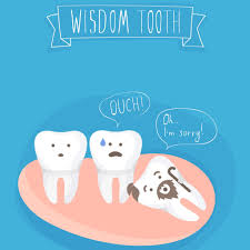 Image result for wisdom tooth sockets cartoon