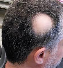 alopecia concise cal knowledge