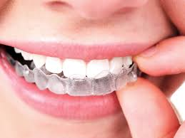 what is invisalign see the benefits