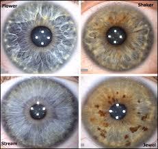 The Four Iris Types That Correspond With The Four Energy