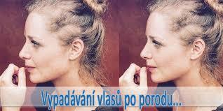 Vypadávání Vlasů Po Porodu Strašák Mnoha žen Kyblikovcz