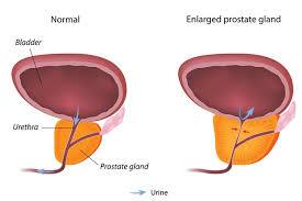 Bladder Chart Nhs Benign Prostate Enlargement Nhs