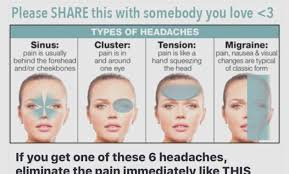 Different Types Of Headaches Chart Headache Chart And Meaning Best Picture Of Chart Anyimage Org