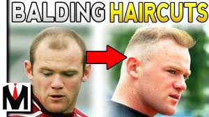 Male Pattern Baldness Haircuts Unique 48 BEST Men's HAIRSTYLES For BALDING Guys Receding Hairline How