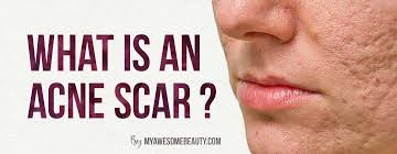 what is an acne scar