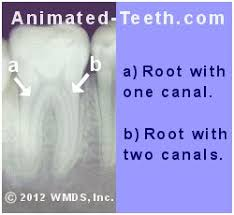 How do i know if retreatment is the best choice and what are the alternatives? Root Canal Treatment Costs General Dentist Specialist And Retreatment Prices