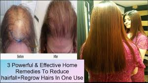 3 Powerful Home Remedies For Reducing Regrowing Hair Fall Get