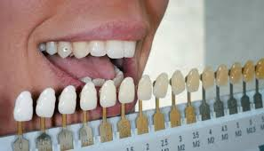 How To Choose Your Teeth Colour Choosing Teeth Shades