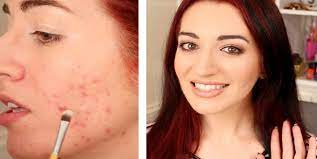 genius hacks to cover up the acne using