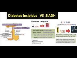 Siadh Vs Diabetes Insipidus Chart Videos Matching Siadh Vs Diabetes Insipidus Revolvy