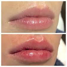 lip filler in austin tx viva day spa