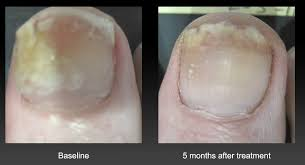nail treatment for fungus in seattle