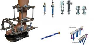external fixator ankle external fixation system circular adult salvation