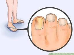 treating toenail fungus cally image led get rid of toe fungus step 1