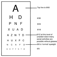 Snellen Chart Result Interpretation 11 Rational Snellen Chart Explained