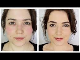 the 25 best ideas about rosacea makeup on makeup for rosacea rosacea and best makeup for rosacea