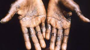 Two cases of monkeypox virus found in ...