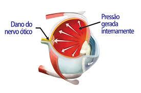 Resultado de imagem para глаукома