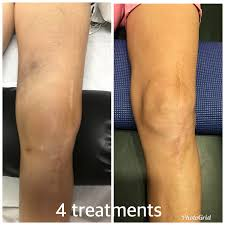 Contour Light Body Sculpting Before And After Lighten Up At Westlake Body Contouring Conejo Valley