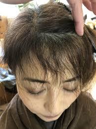 ステキな前髪は縮毛矯正で手に入る失敗しないための前髪縮毛矯正