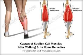 home remedies for leg pain and swelling