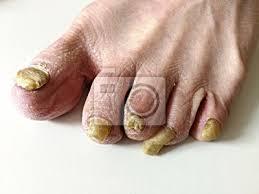 Fototapeta Houbová Infekce Na Nehty Nohou člověka