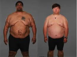 Two Men Begin Their Journey Cu Anschutz Health And