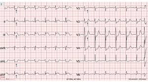 Cardiovascular Medicine St Elevation Myocardial Infarction Due To