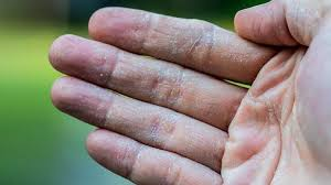 Is That Rash Psoriasis? Psoriasis Pictures and More | Everyday Health