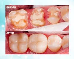 Dental Inlay Inlays Onlays Levenshulme Dental Cosmetics Inlay