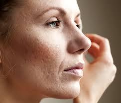 Image result for open pores,nari
